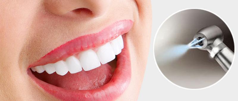 igiene orale e prevenzione dentisti lecce